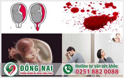 Tự ý phá thai bằng thuốc tại nhà dẫn đến nhiều biến chứng nguy hiểm